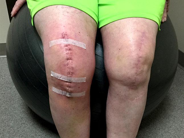physiotherapist-maple-ridge-post-surgical-rehabilitation